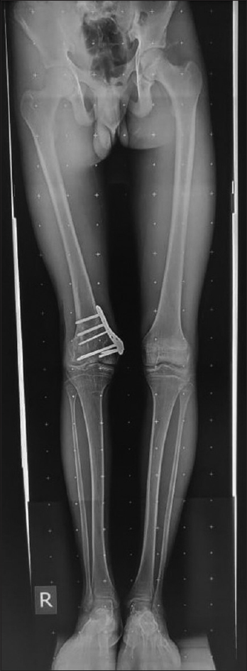 Figure 7: Postoperative radiograph of a patient 1 year after modified technique of supracondylar chevron osteotomy and internal fixation with anatomically designed medial distal femur locking plate